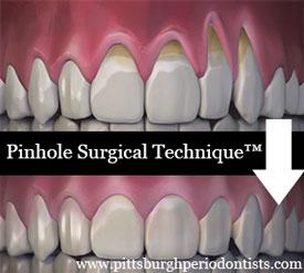 Pinhole Surgical Technique (PST)